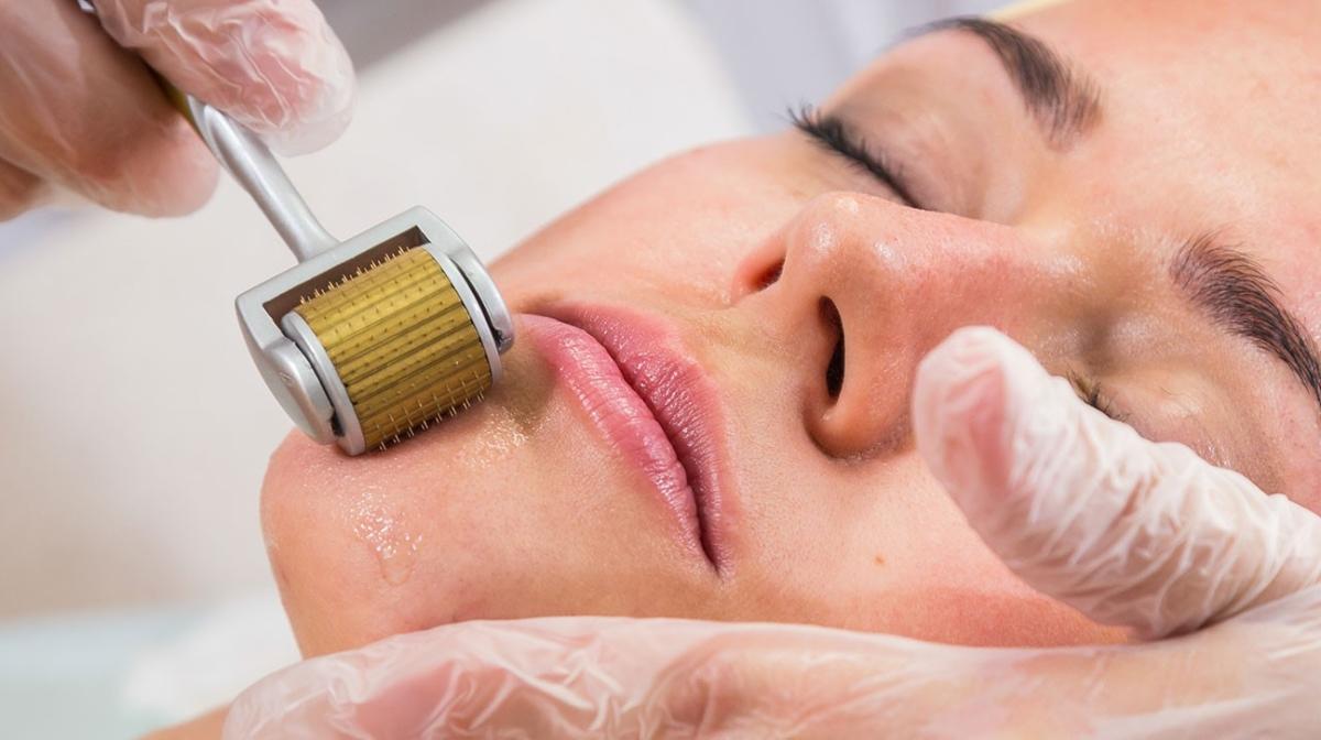 mikronakłuwanie skóry